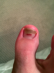 toe damaged from hiking